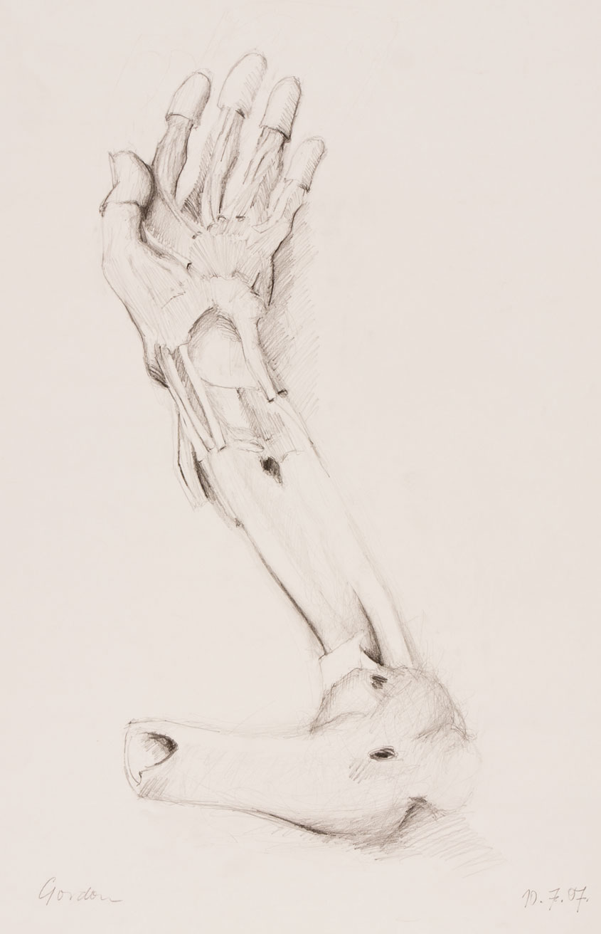 Pencil drawing of dissected human forearm and hand